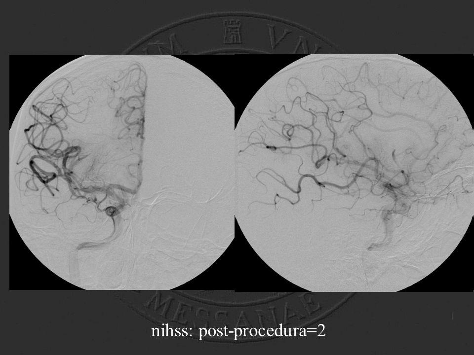 nihss: post-procedura=2