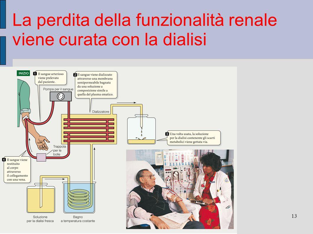 La perdita della funzionalità renale viene curata con la dialisi