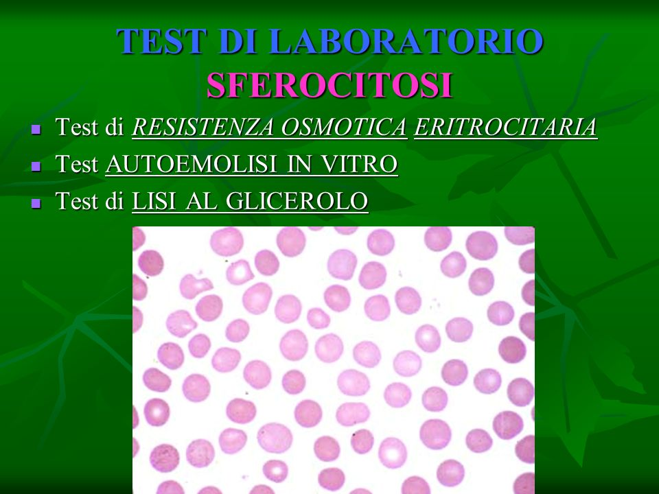 TEST DI LABORATORIO SFEROCITOSI