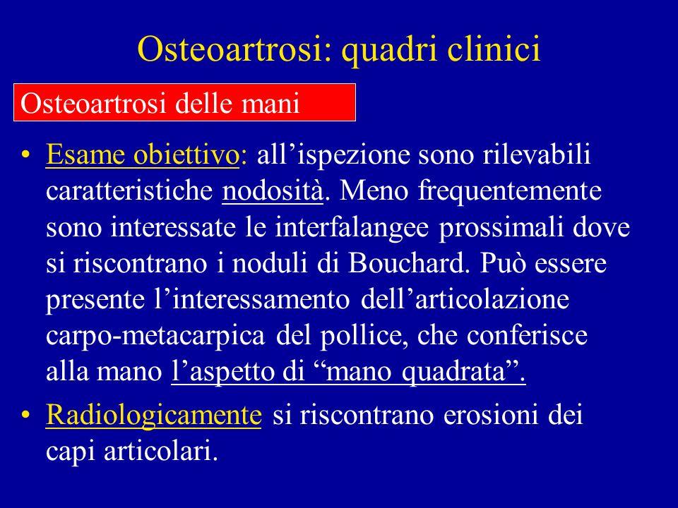 Osteoartrosi: quadri clinici