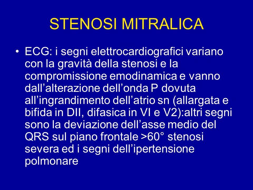 STENOSI MITRALICA