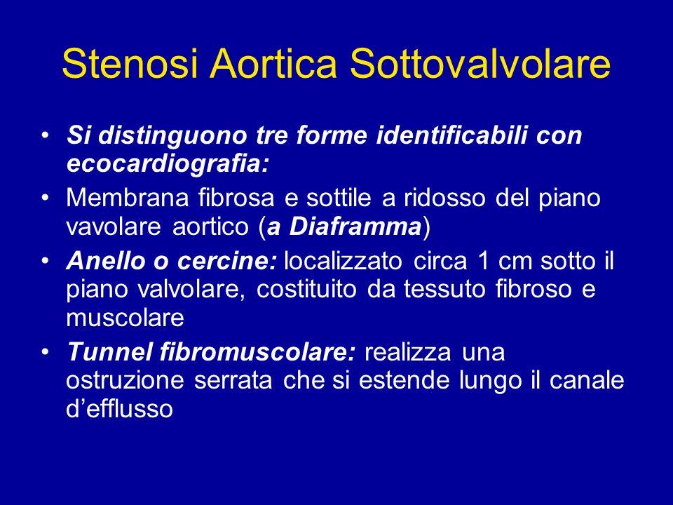 Stenosi Aortica Sottovalvolare
