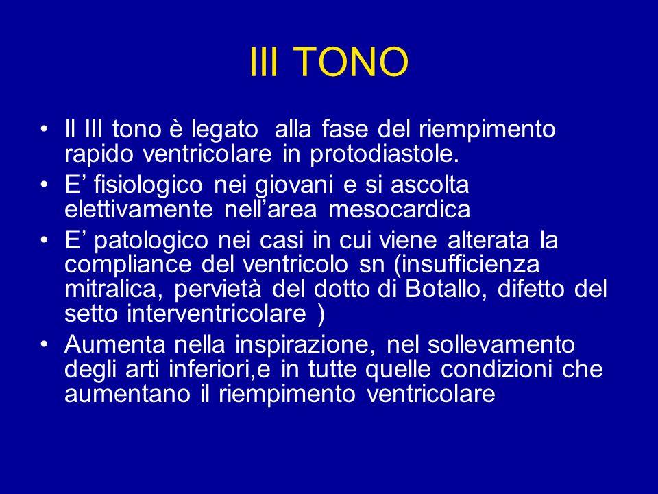 III TONO Il III tono è legato alla fase del riempimento rapido ventricolare in protodiastole.