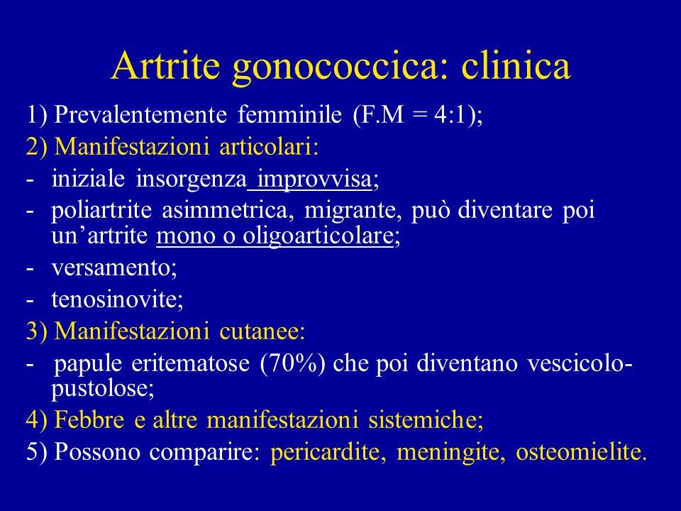 Artrite gonococcica: clinica
