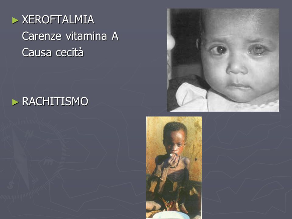 XEROFTALMIA Carenze vitamina A Causa cecità RACHITISMO