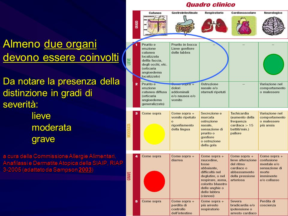Almeno due organi devono essere coinvolti Da notare la presenza della distinzione in gradi di severità: lieve moderata grave a cura della Commissione Allergie Alimentari, Anafilassi e Dermatite Atopica della SIAIP, RIAP 3-2005 (adattato da Sampson 2003)