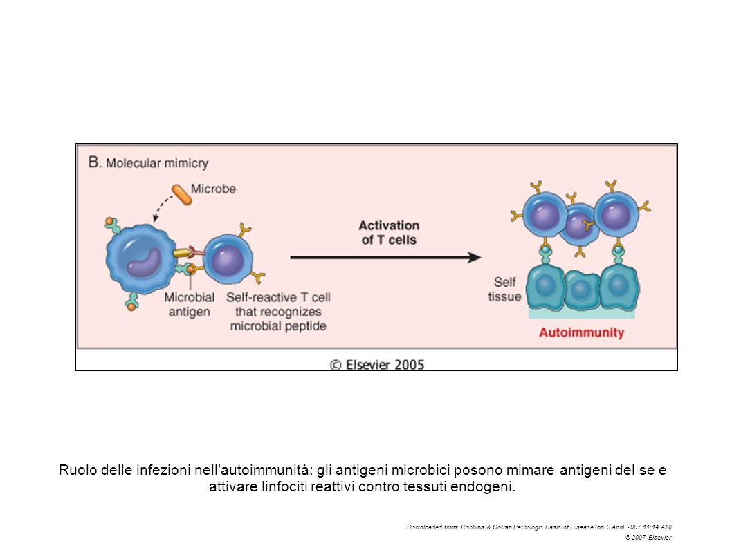 Ruolo delle infezioni nell autoimmunità: gli antigeni microbici posono mimare antigeni del se e attivare linfociti reattivi contro tessuti endogeni.