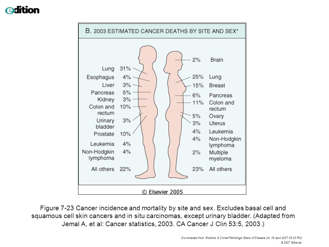 Figure 7-23 Cancer incidence and mortality by site and sex