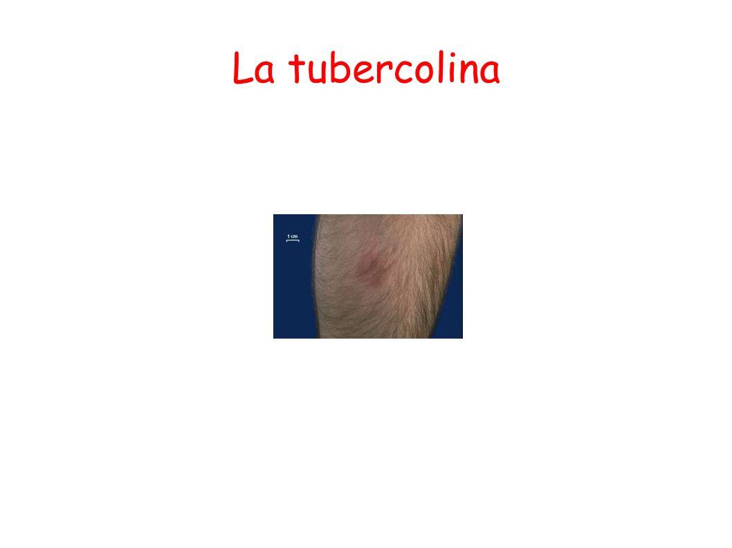 La tubercolina