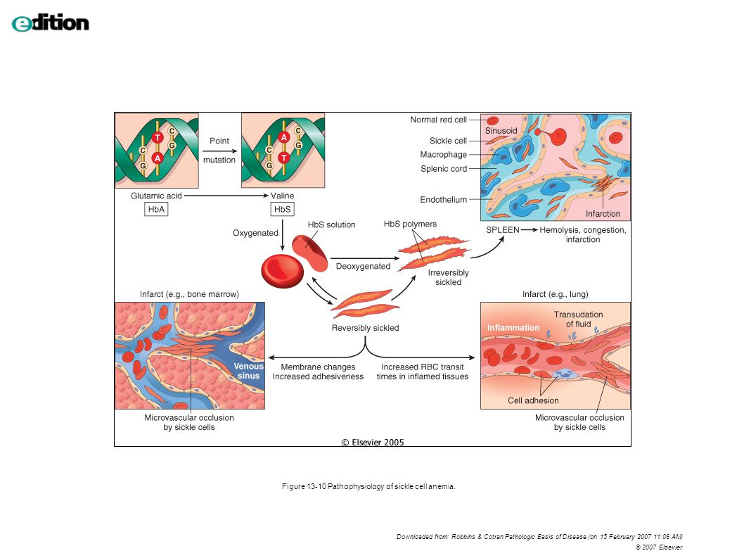 Figure 13-10 Pathophysiology of sickle cell anemia.