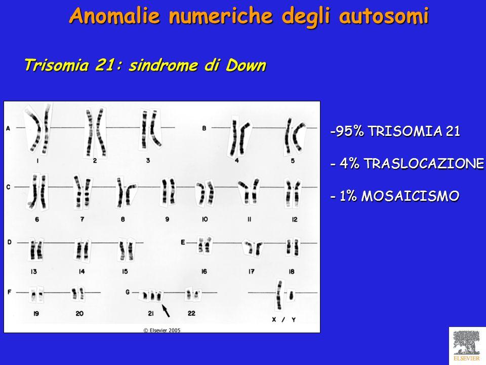 Anomalie numeriche degli autosomi