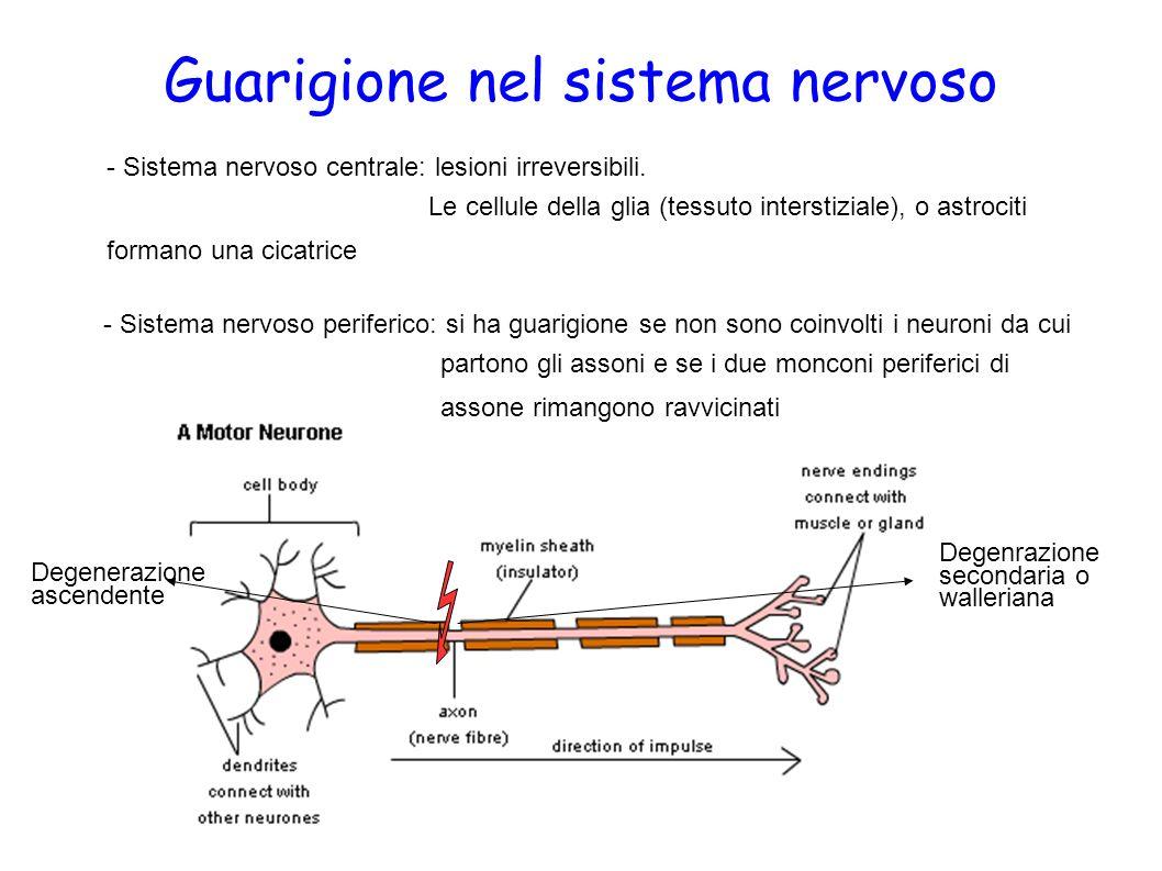 Guarigione nel sistema nervoso