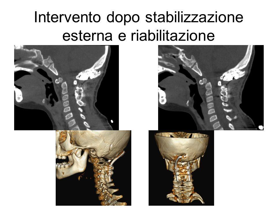 Intervento dopo stabilizzazione esterna e riabilitazione