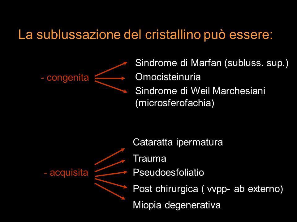 La sublussazione del cristallino può essere: