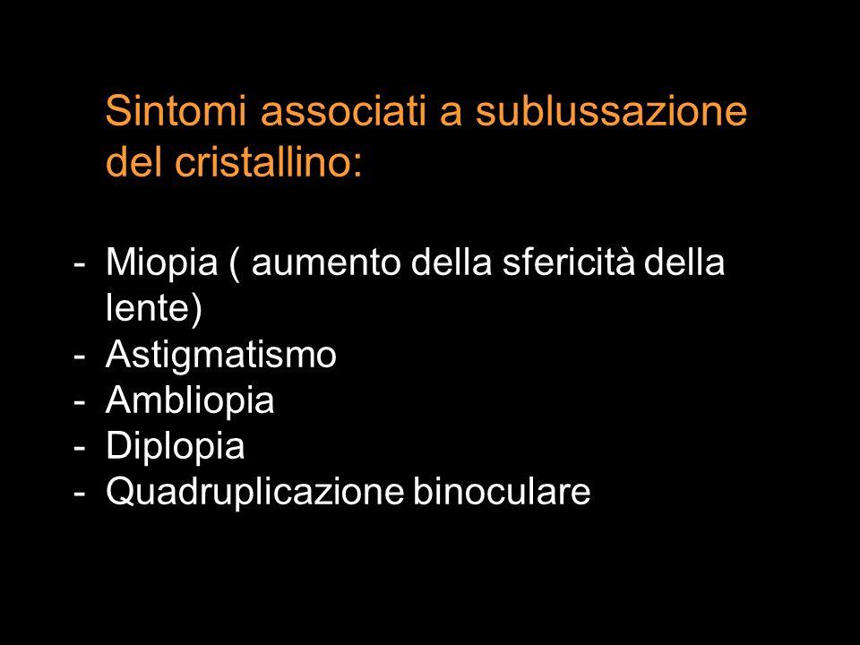 Sintomi associati a sublussazione del cristallino: