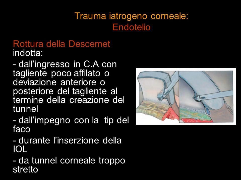 Trauma iatrogeno corneale: