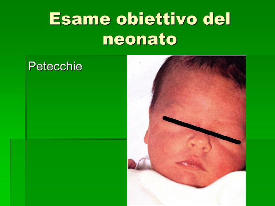 Esame obiettivo del neonato