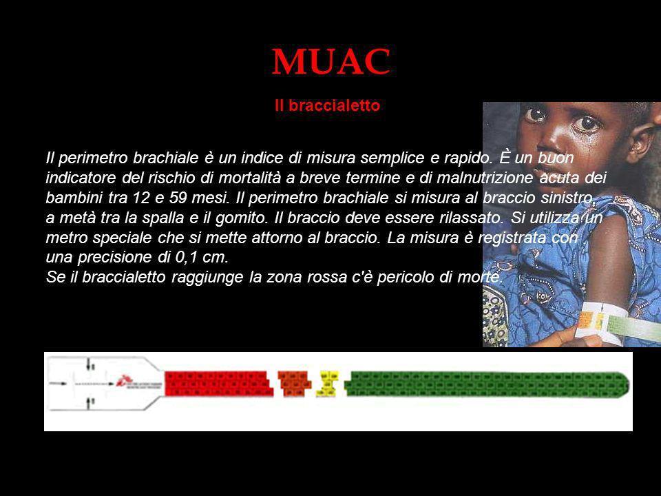MUAC Il braccialetto.