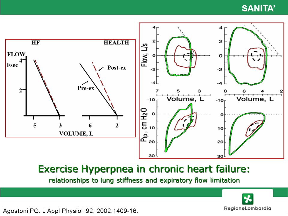 Exercise Hyperpnea in chronic heart failure: