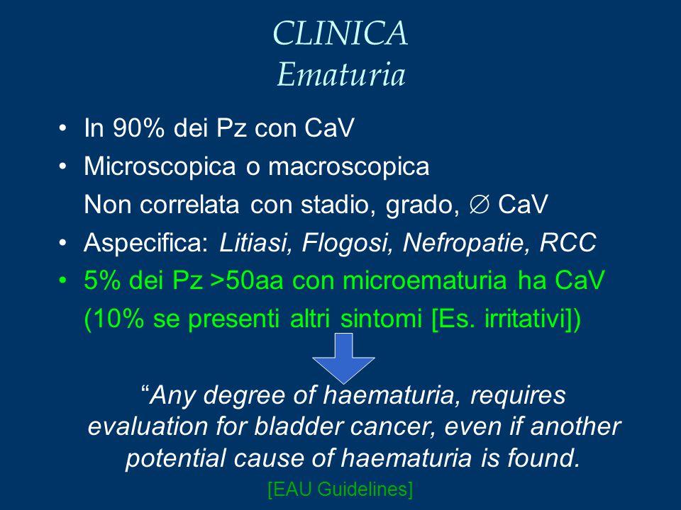 CLINICA Ematuria In 90% dei Pz con CaV Microscopica o macroscopica