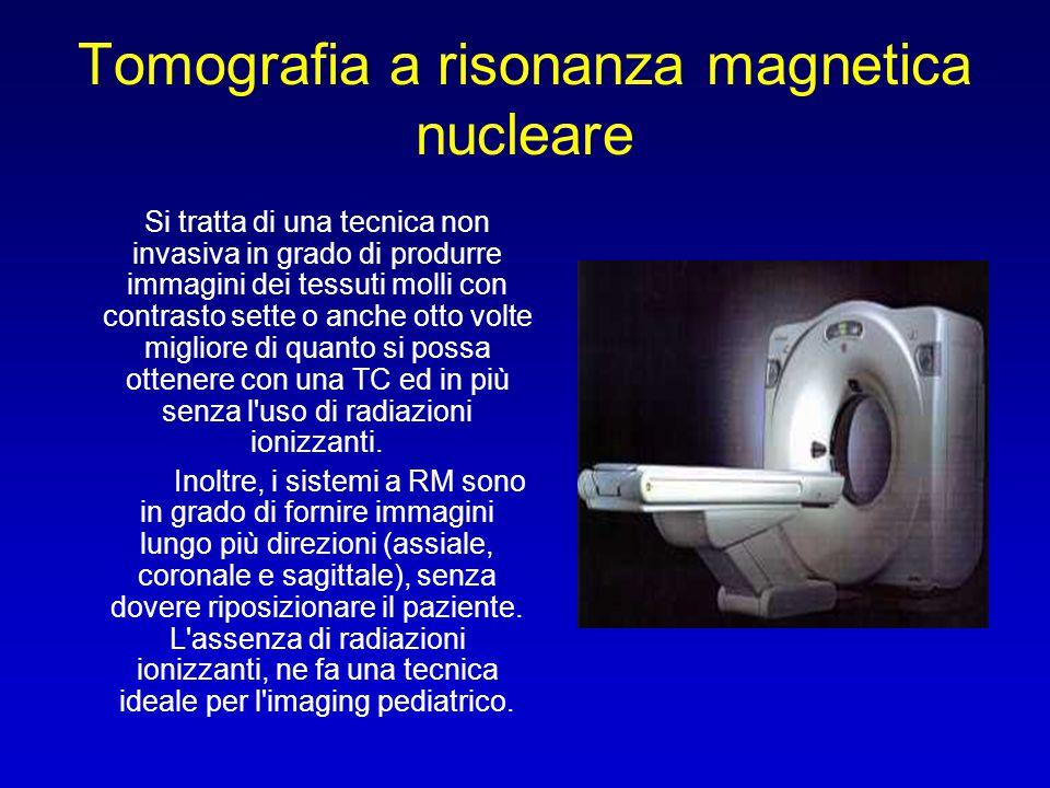 Tomografia a risonanza magnetica nucleare
