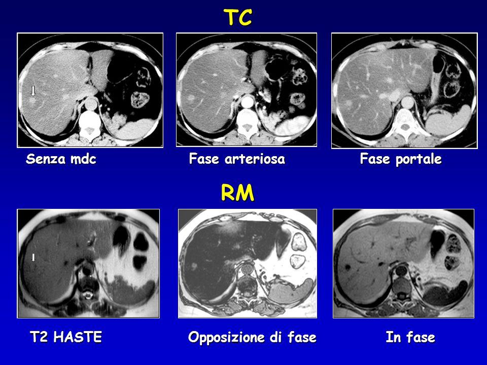 TC RM Senza mdc Fase arteriosa Fase portale