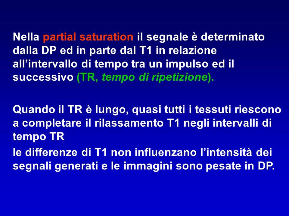 Nella partial saturation il segnale è determinato dalla DP ed in parte dal T1 in relazione all'intervallo di tempo tra un impulso ed il successivo (TR, tempo di ripetizione).