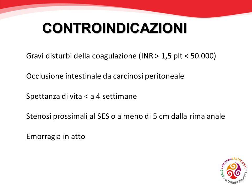 CONTROINDICAZIONI Gravi disturbi della coagulazione (INR > 1,5 plt < 50.000) Occlusione intestinale da carcinosi peritoneale.