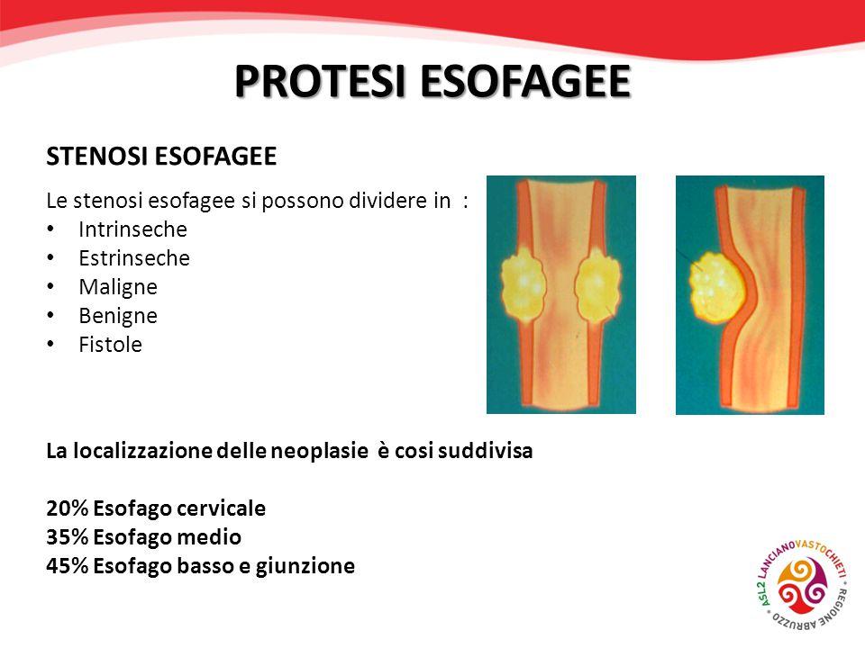 PROTESI ESOFAGEE STENOSI ESOFAGEE