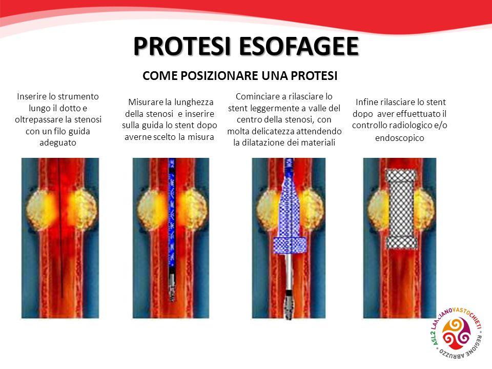COME POSIZIONARE UNA PROTESI