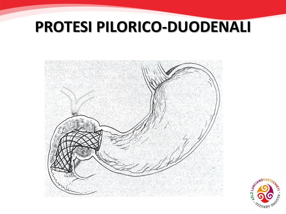 PROTESI PILORICO-DUODENALI