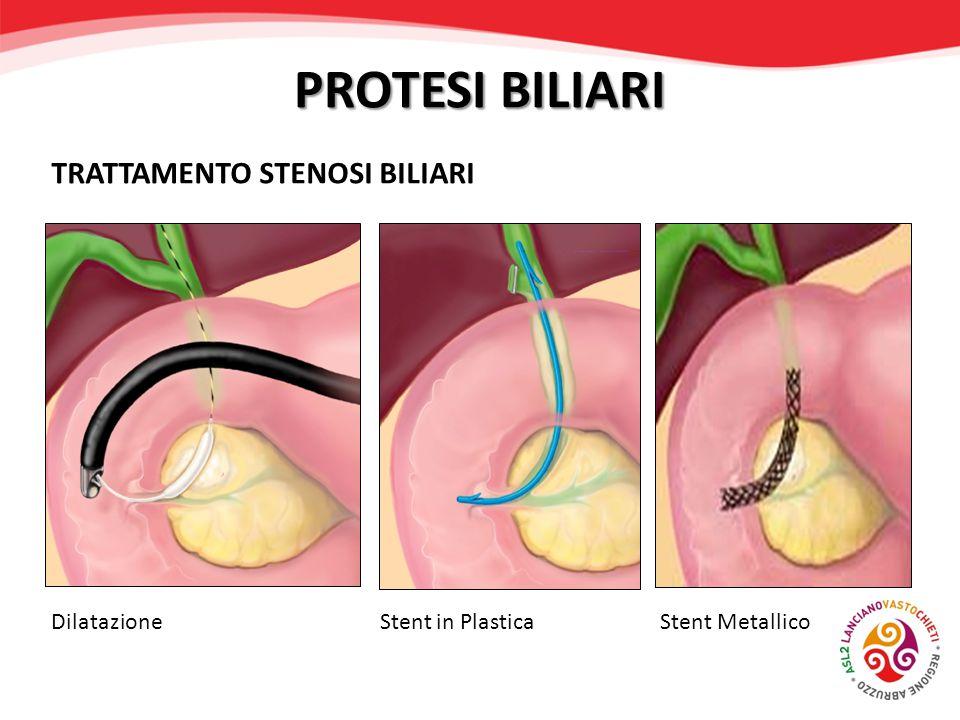 PROTESI BILIARI TRATTAMENTO STENOSI BILIARI