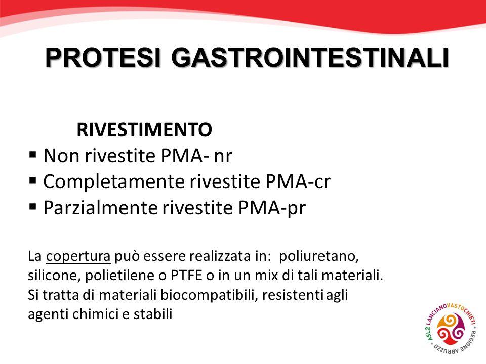 PROTESI GASTROINTESTINALI