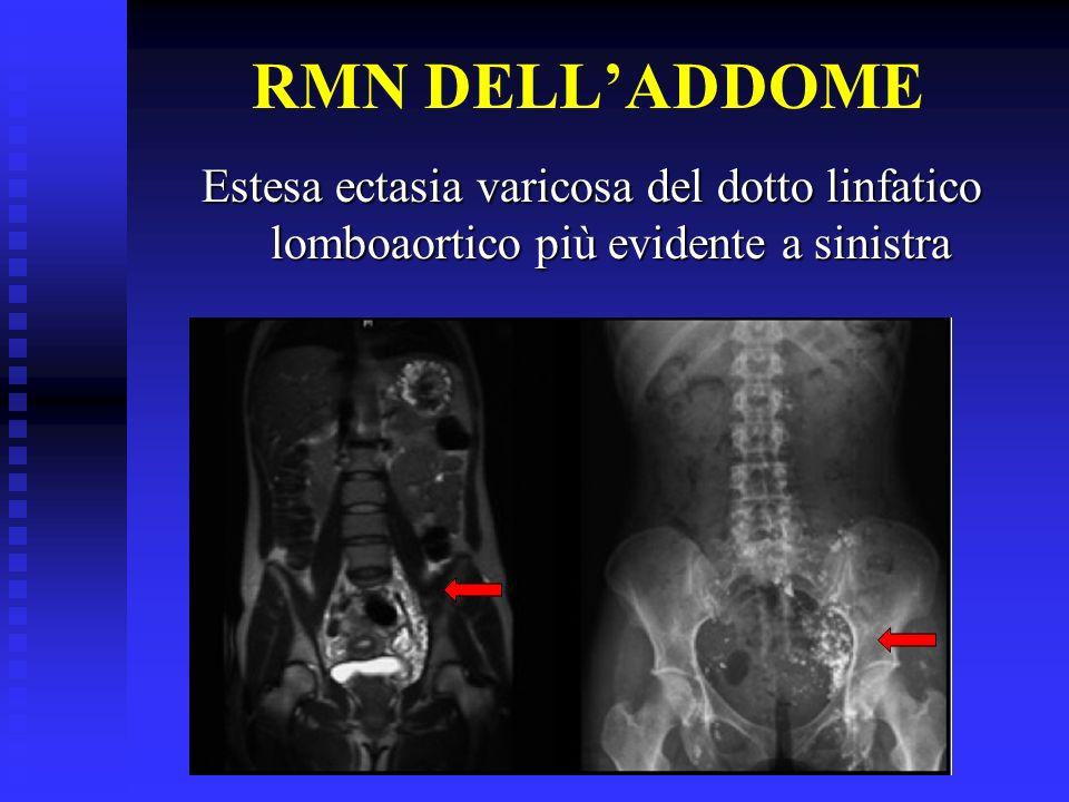 RMN DELL'ADDOME Estesa ectasia varicosa del dotto linfatico lomboaortico più evidente a sinistra