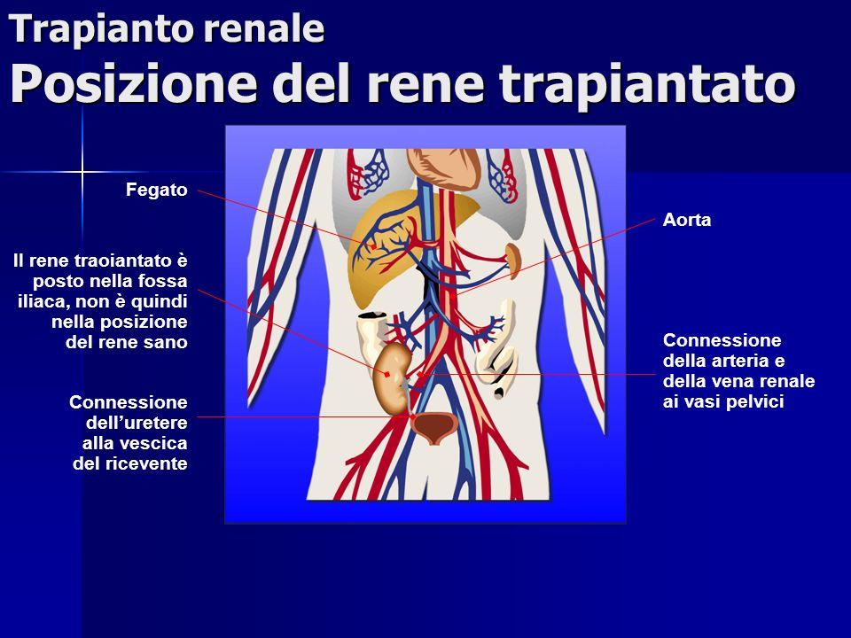 Trapianto renale Posizione del rene trapiantato