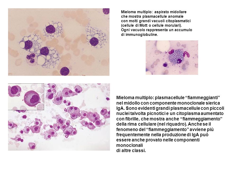 Mieloma multiplo: plasmacellule fiammeggianti