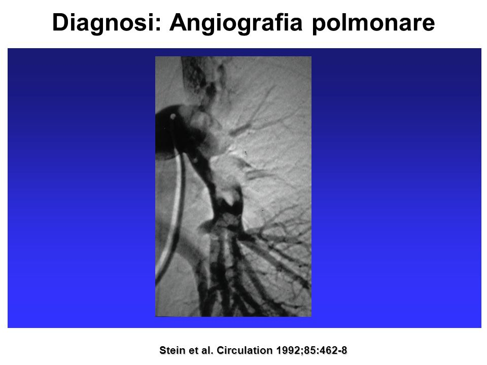 Diagnosi: Angiografia polmonare