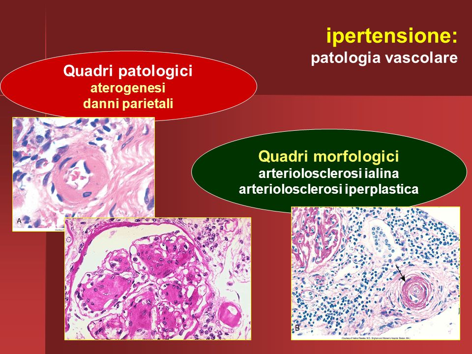 arteriolosclerosi ialina arteriolosclerosi iperplastica