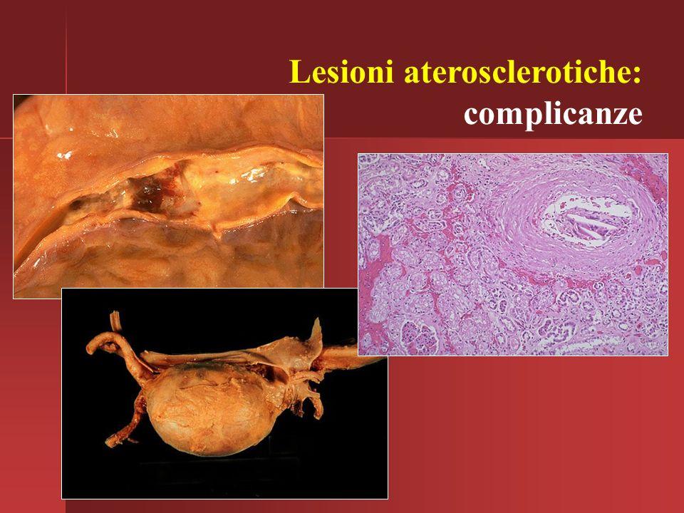 Lesioni aterosclerotiche: