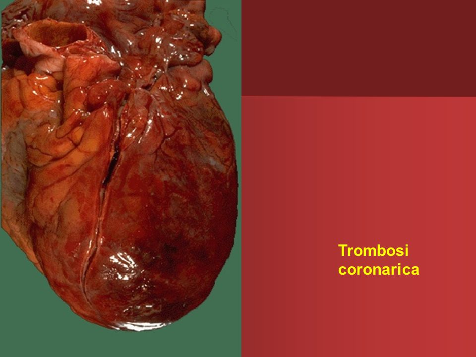 Trombosi coronarica