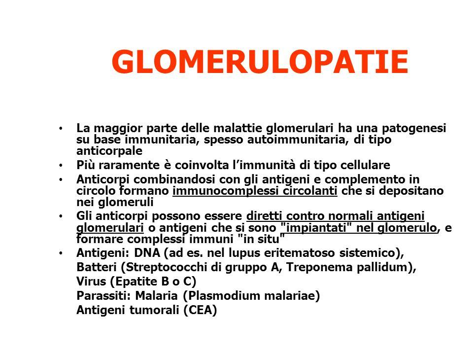 GLOMERULOPATIE La maggior parte delle malattie glomerulari ha una patogenesi su base immunitaria, spesso autoimmunitaria, di tipo anticorpale.