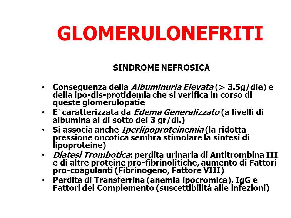 GLOMERULONEFRITI SINDROME NEFROSICA