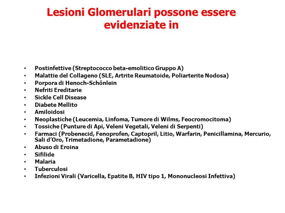 Lesioni Glomerulari possone essere evidenziate in