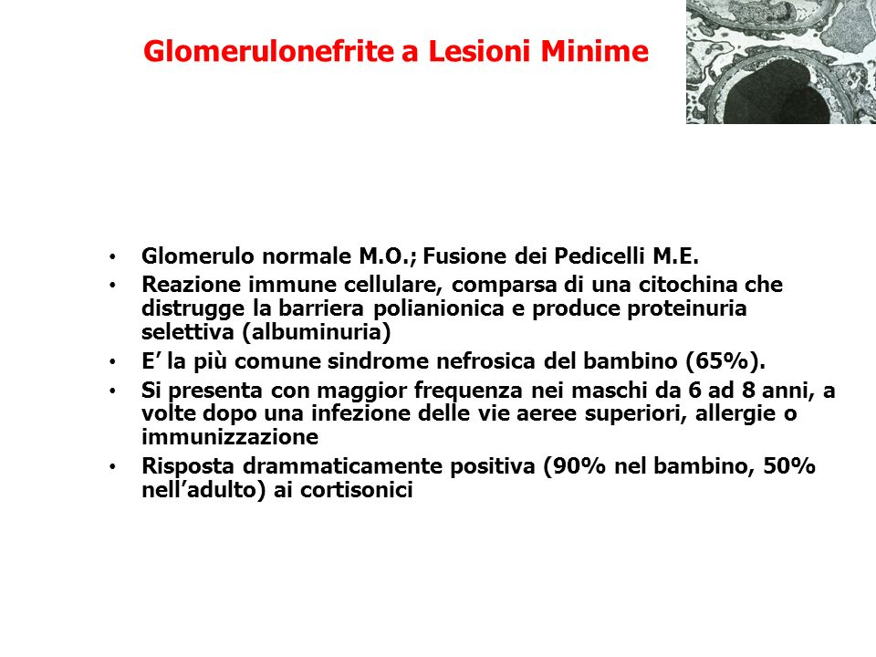 Glomerulonefrite a Lesioni Minime