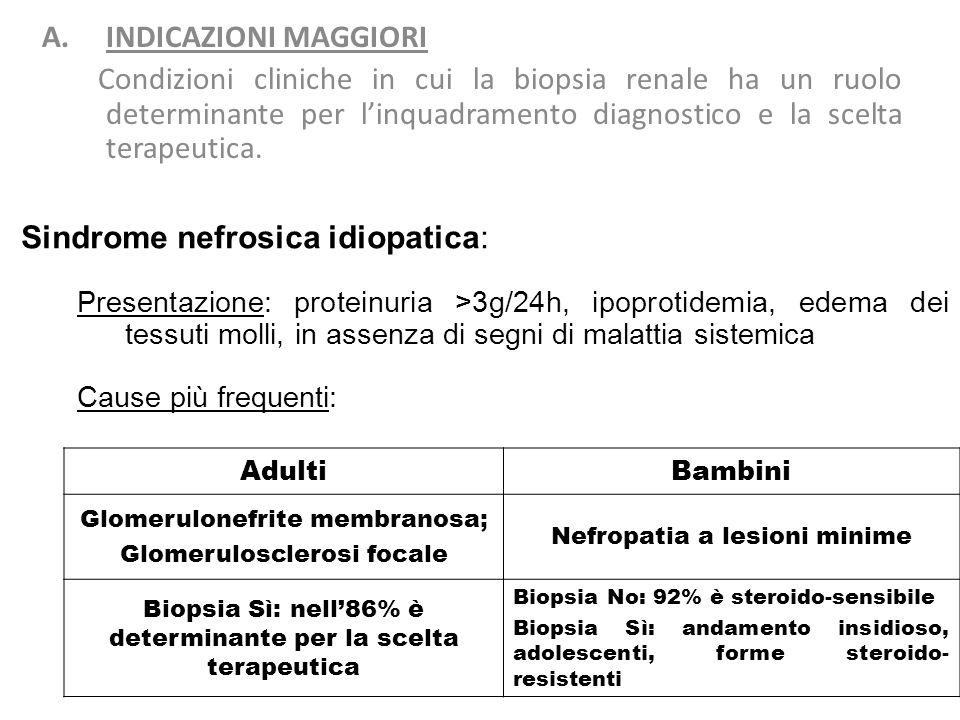 Sindrome nefrosica idiopatica:
