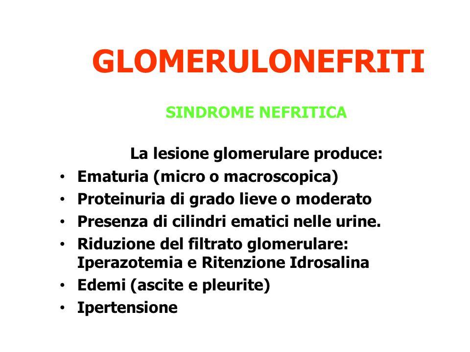 La lesione glomerulare produce: