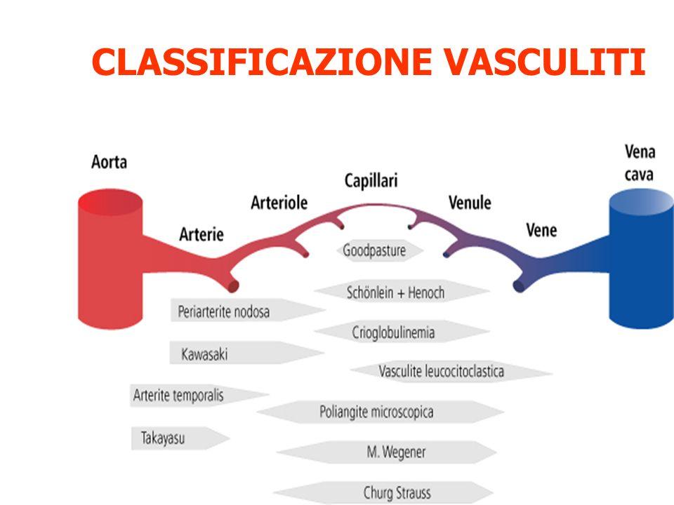 CLASSIFICAZIONE VASCULITI
