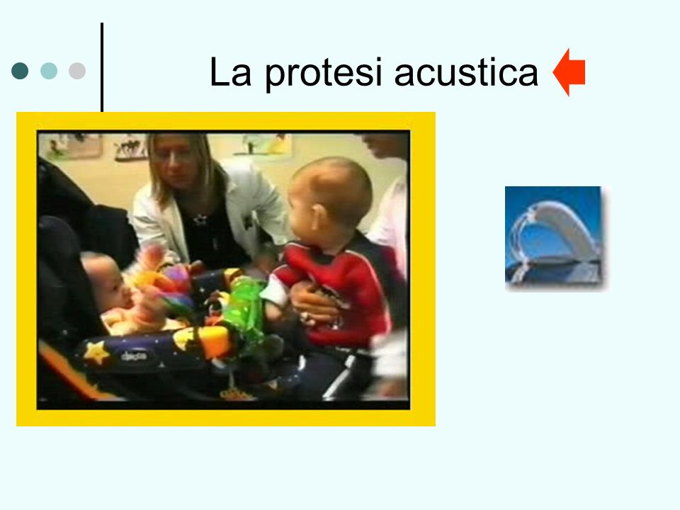 La protesi acustica
