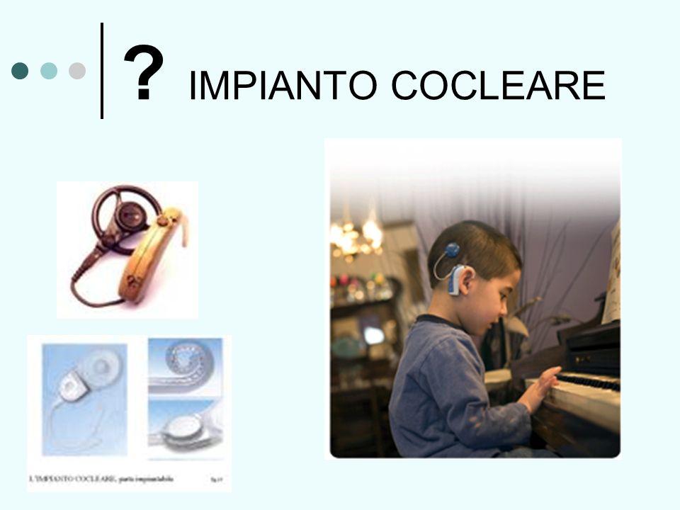 IMPIANTO COCLEARE