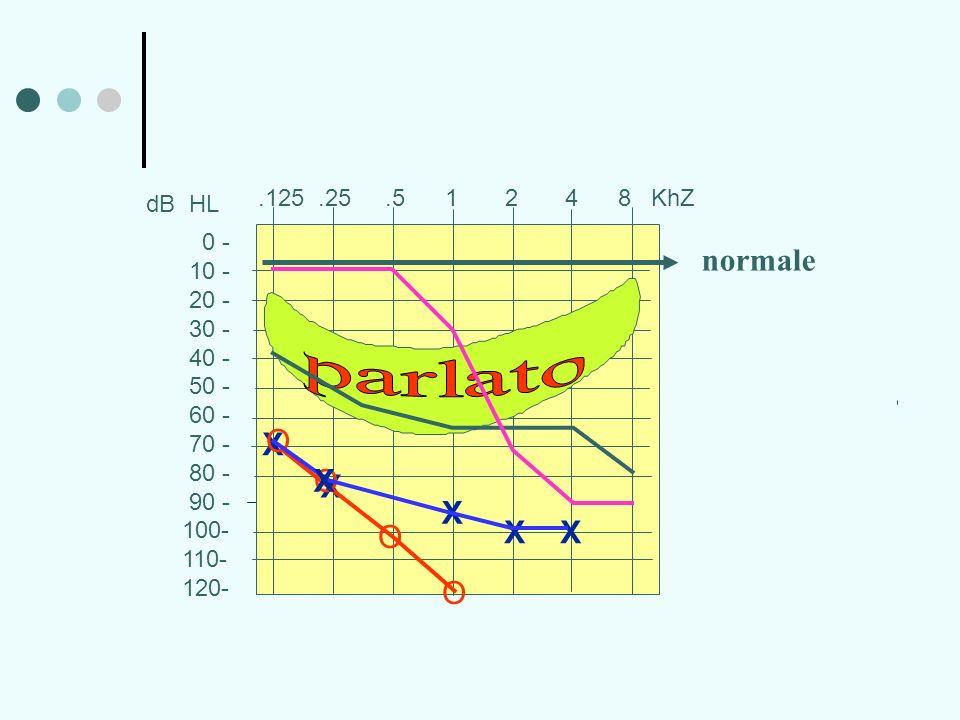 parlato normale X O X O X X O X X O .125 .25 .5 1 2 4 8 KhZ dB HL 0 -